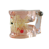 HST-C7 Dental Clear Mixed Age model with Caries