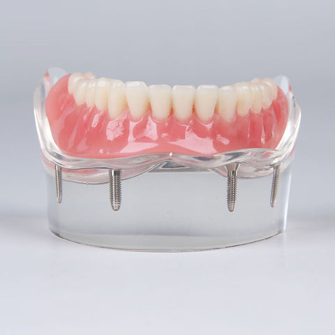 Dental Teeth Implant Model XX-M6003