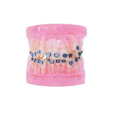 HST-B5-02 Dental Ortho Metal&Ceramic