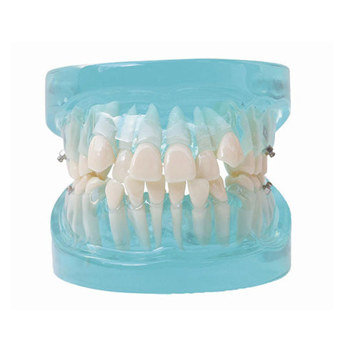 HST-B2 Dental Orthodontic Model
