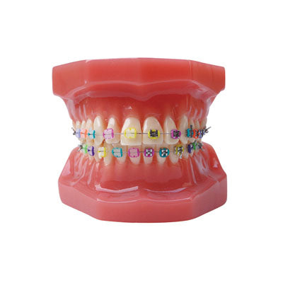 HST-B6-02 Dental Ortho Metal&Ceramic