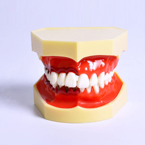 Dental Periodontal Educational Model XX-M4025