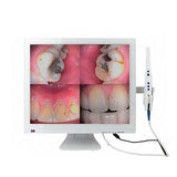 MLG® M-998 (2-in-1) Dental Wired CCD Intraoral Camera+self-contained 19 inch monitor