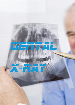 <span>Dental X-Ray</span>