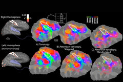 Multiparameter Mapping: Auditory cortical maps of sound frequency and attention. Photo by University at Buffalo