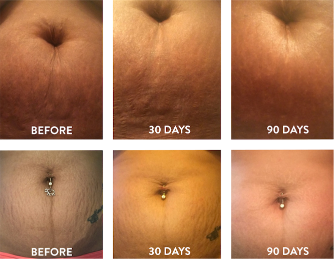 90 Day Stretch Mark Treatment