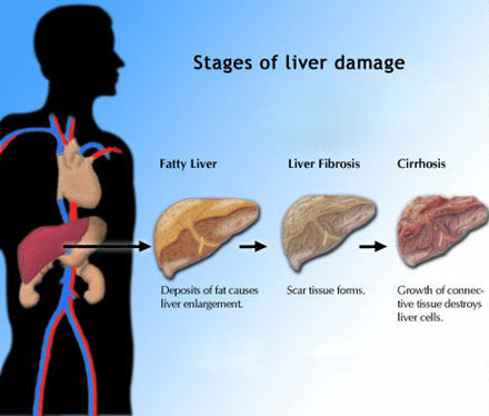 Fatty Liver Solution :: 75% Commission :: All Natural Program