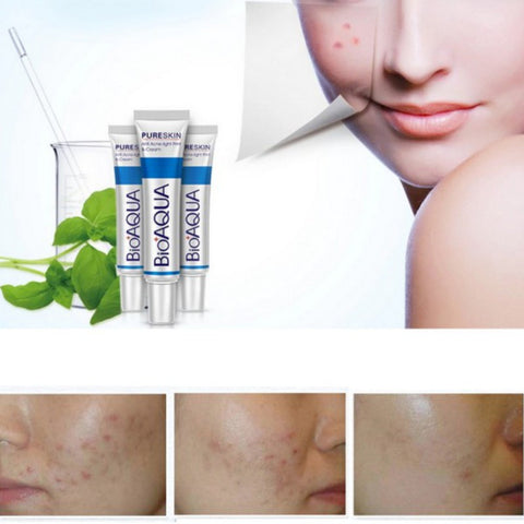 Scar Removal Cream - Miss Hollywood's