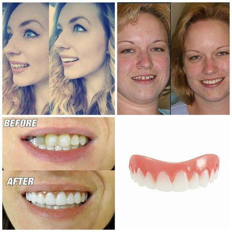 Amazing Smile Veneers