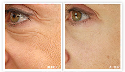 Renaissance Hydrating Face Cream Results by John Zannis, MD