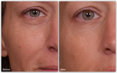 before after renaissance anti aging face cream