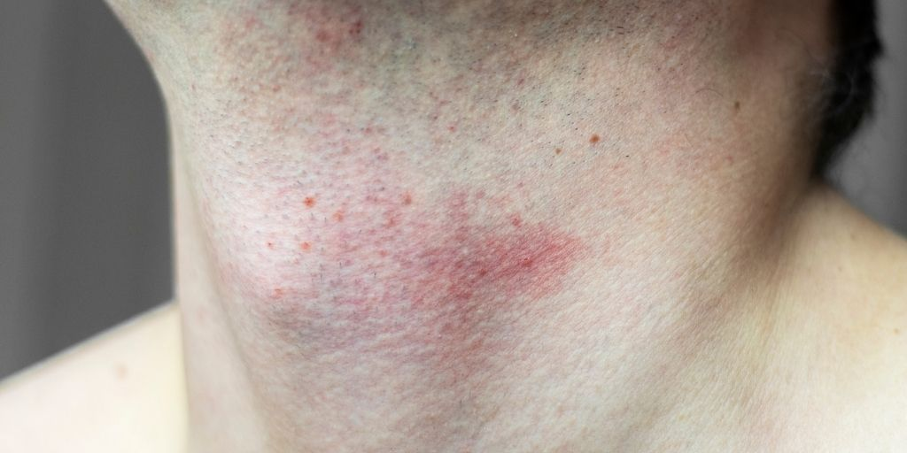 Man with Razor Bumps After Shaving