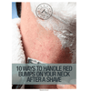 10 Ways To Handle Red Bumps On Your Neck After A Shave