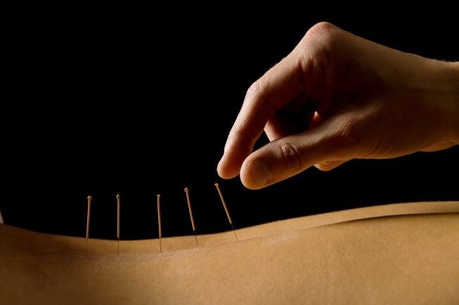 Acupuncture Therapy Services