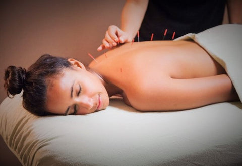 Acupuncture Therapy spa