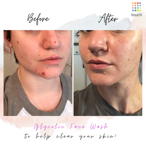 Before and after Glycolic acid cleanser - Touch Skin Care