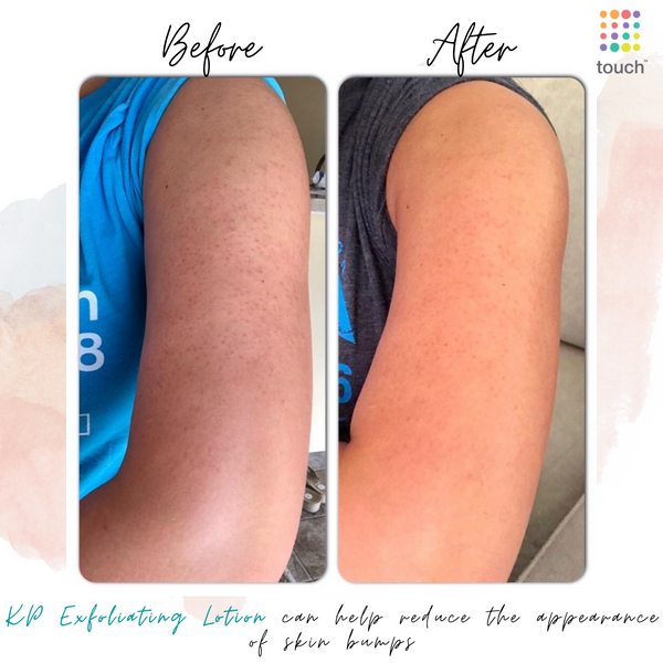 Before and after - KP Lotion & Wash - Touch Skin Care