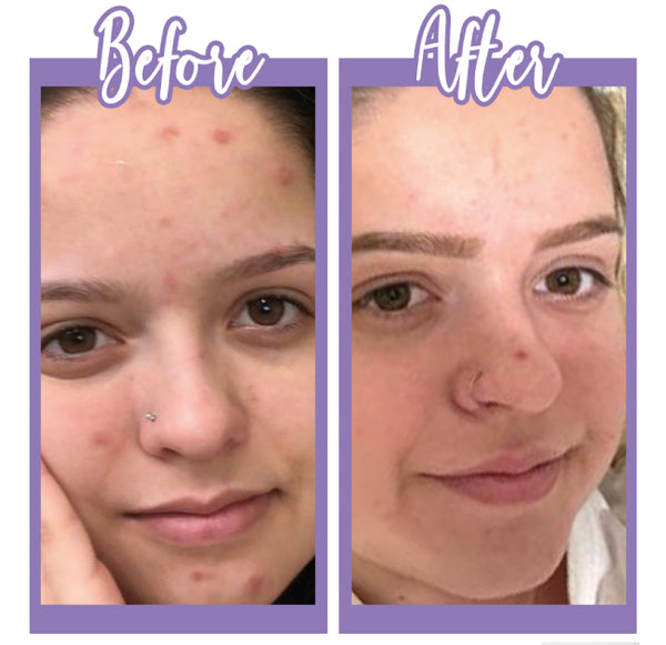 Before and After - Bright And Clear - Touch Skin Care