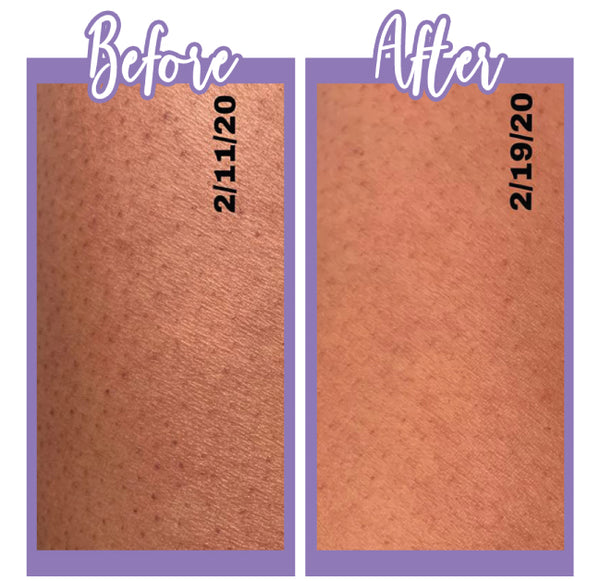 Before and after KP Wash and Lotion - Touch Skin Care