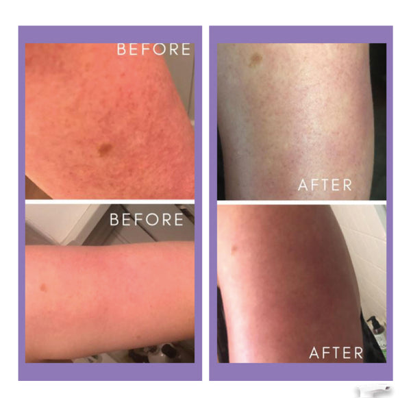 Before and after - KP Wash And Lotion - Touch Skin Care