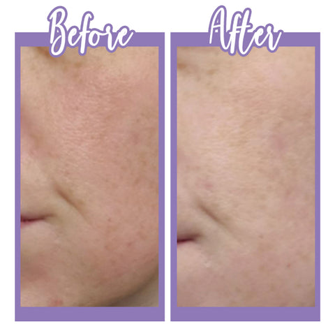 Before and after Glycolic Acid Toner - Touch Skin Care