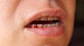 WHY YOUR GUMS ARE BLEEDING AND HOW TO PUT A STOP TO THIS DILEMMA