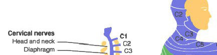 SCI - Spinal Cord Injury - C3 Quadriplegia