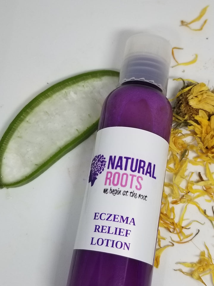 Eczema lotion 4 Oz.
