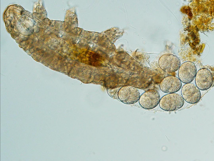 Researcher captured a water bear tardigrade laying eggs with LabCam