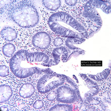 Colon tubular adenoma. Image captured by LabCam Microscope Adapter.