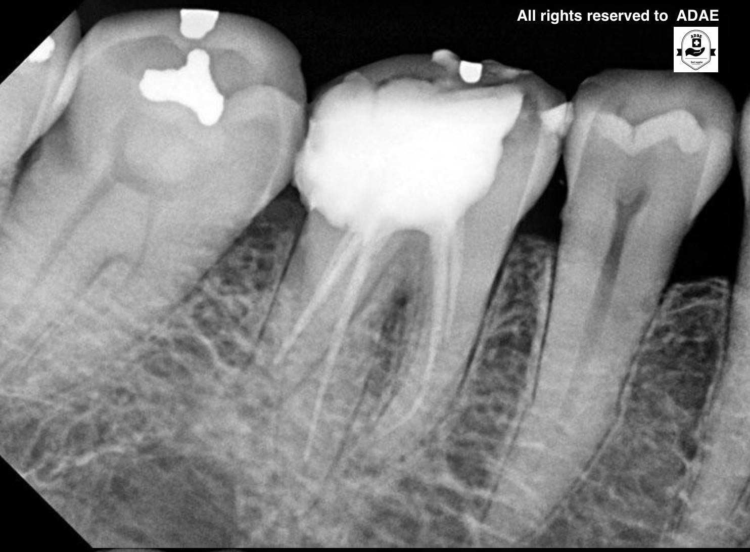 WHY ATECO is the best among dental X ray sensors from ADAE – ADAE ...