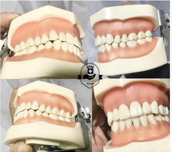 ADAE AD032 dental study model - ADAE Dental Online Store