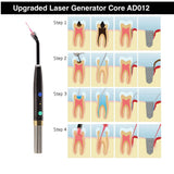 ADAE AD012 Dental Laser Pen (with ADAE original laser core) - ADAE Dental Online Store