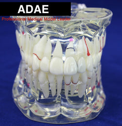 ADAE AD017 adult transparent dental illustration model ( natural size) - ADAE Dental Online Store