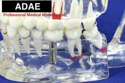 ADAE AD018 transparent dental pathological illustration model with implant tooth - ADAE Dental Online Store