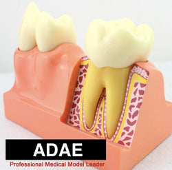ADAE AD076 tooth anatomical structure illustration model (Size :X 4 times) - ADAE Dental Online Store