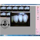 ADAE professional Intra oral camera (4 in one)-Touch screen - ADAE Dental Online Store