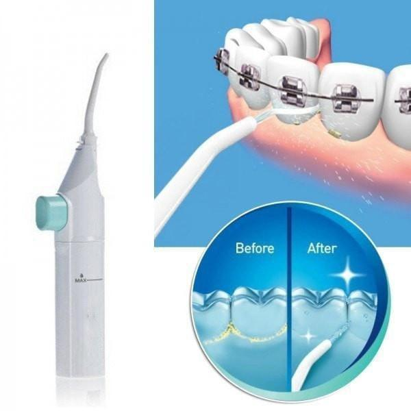 Portable Jet Dental Flosser