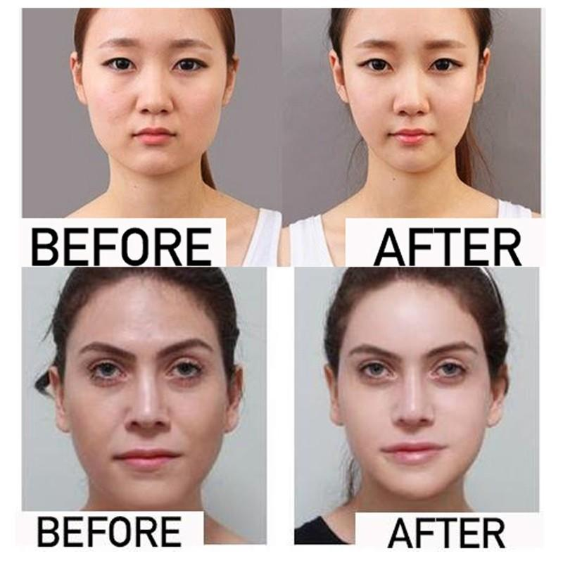 V-Shape Mask For Slimming Chin/Jaw & Anti-Ageing - Product Snatch