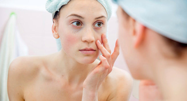 The Pimples Diet, the Easy Solution to Pimple-Free Skin