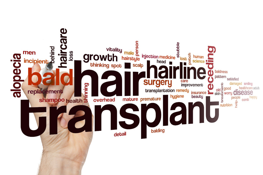 Hair Transplants: What you need to know