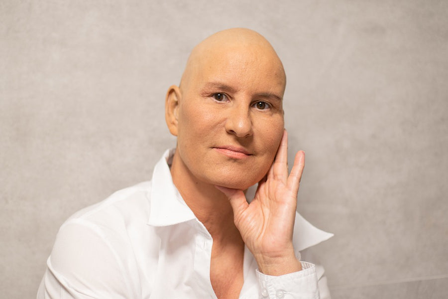 Chemotherapy induced hair loss