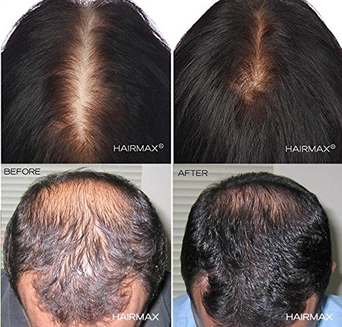 Male And Female Hair Loss Hairmax Uk