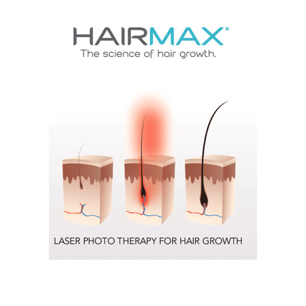 Effects of Low Level Laser Therapy (LLLT) on the Hair Follicle and Hair Falling Out  sc 1 st  HairMax UK & HairMax UK | Effects of Low Level Laser Therapy on the Hair Follicle ...