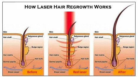 laser light therapy for hair
