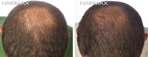 Before And After Photo Results From Hairmax Lasers Hairmax Uk