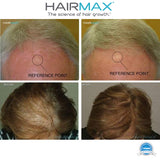 HAIRMAX ULTIMA 9 LASERCOMB