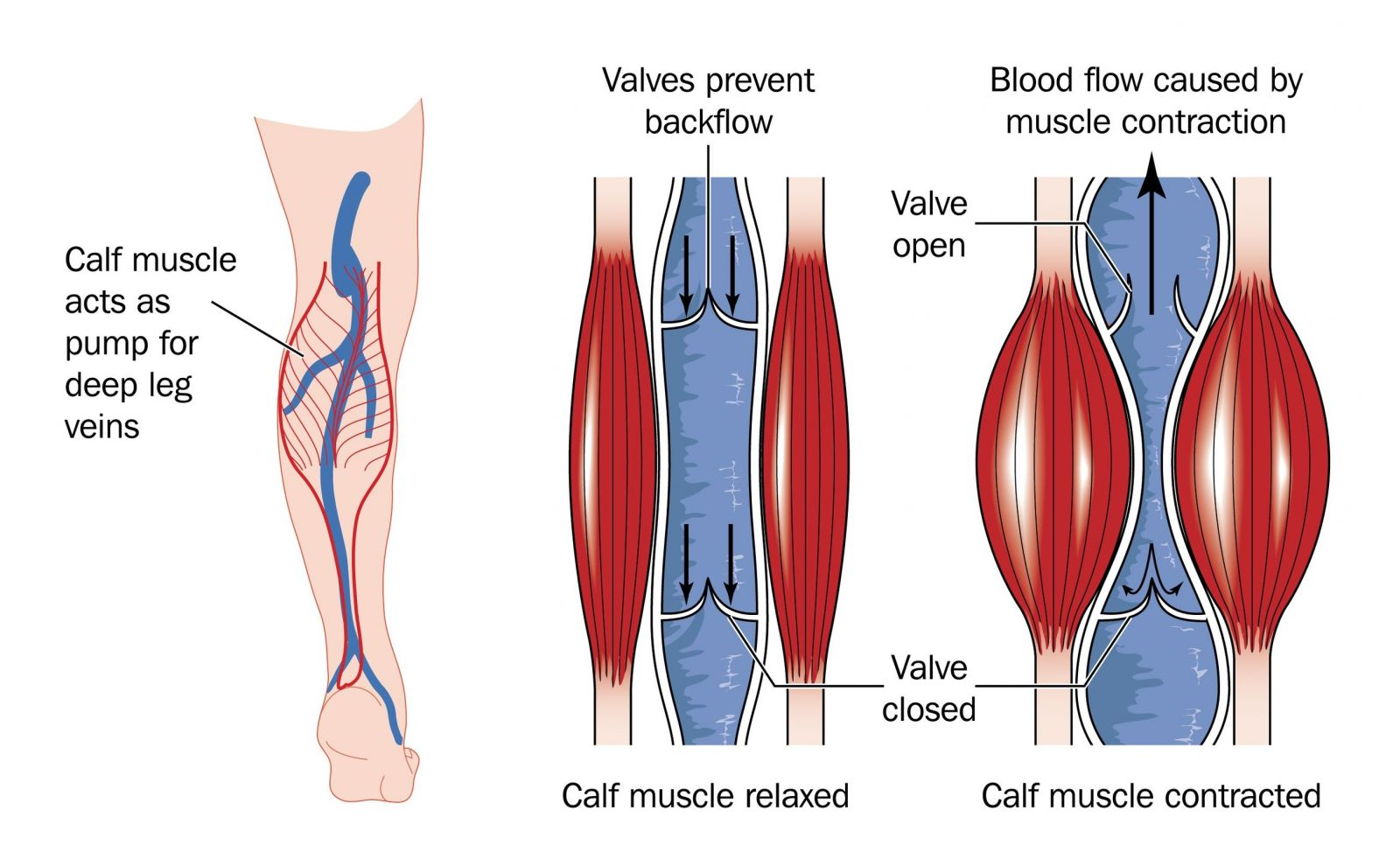 47515170df Source:  http://www.usaveinclinics.com/wp-content/uploads/2016/03/venous-insufficiency.jpg.  Compression stockings are like our leg ...