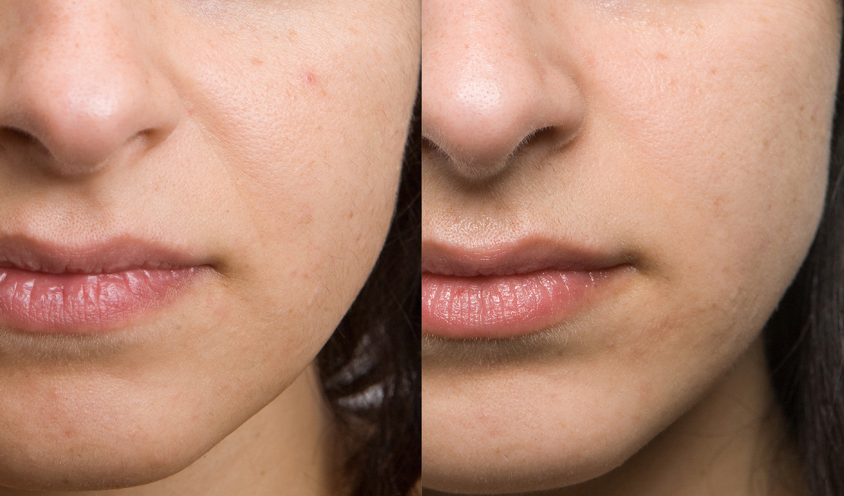 Inner Cheek Enhancement