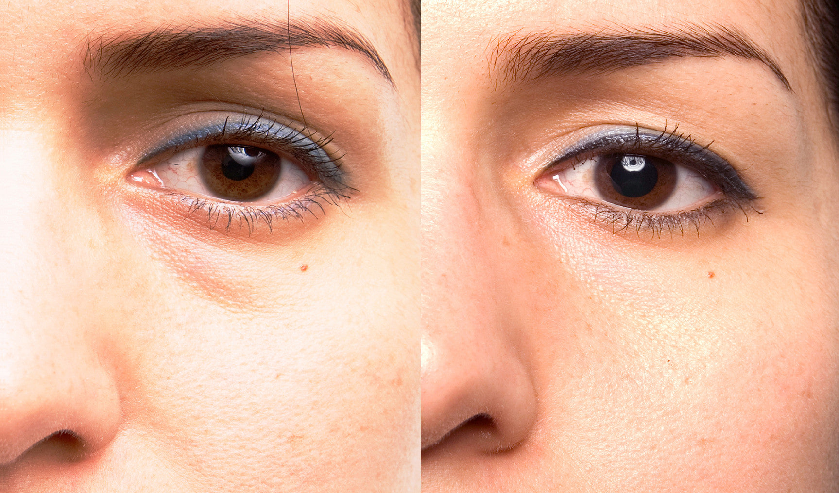 Under Eye Enhancement